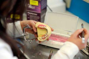 fast denture repairs geelong