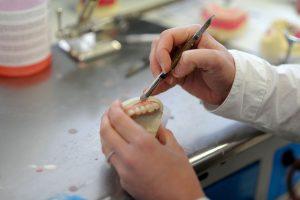 Free denture repair assessment geelong